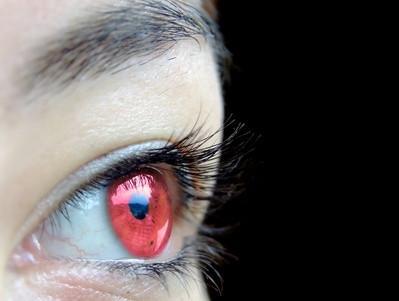 Comment se débarrasser des yeux rouges sur les photos sur un ordinateur